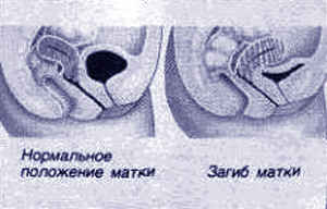 rentgen-vliyanie-na-spermu